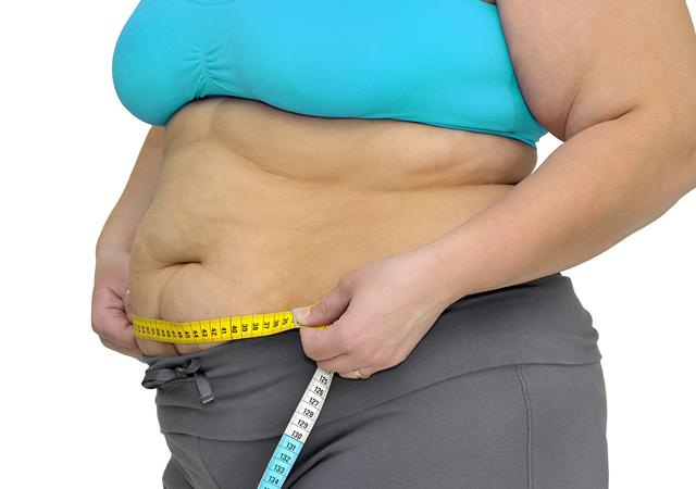 Операция по снижению веса