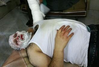 Esed güçlerinin füze saldırısında AA muhabiri yaralandı
