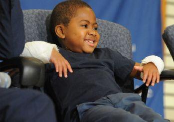 Dünyada ilk defa bir çocuğa el nakli yapıldı