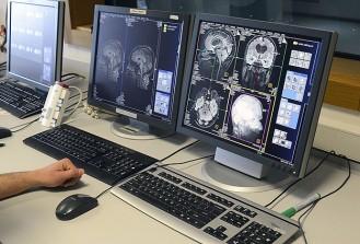 Türk bilim ekibi beynin sırlarını çözme yolunda