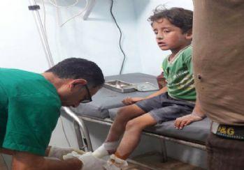 PKK/PYD'den Azez ve Mare'ye saldırı: 2 ölü, 7 yaralı