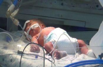 Annesi öldürülen bebeğin hayati aktivitelerinde iyileşme