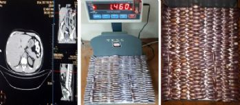 Midesinden 78 kapsül uyuşturucu çıktı