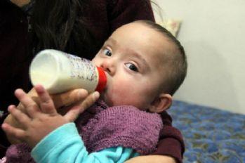 Eymen bebek yaşamak için yardım bekliyor