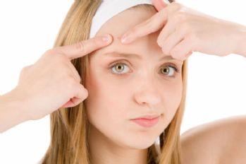 'Hormonlar cildi direk etkiliyor'