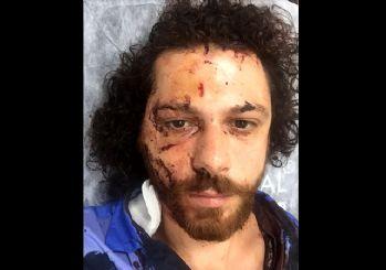 Oral Özer kimdir? Ünlü oyuncu Oral Özer'e şok saldırı! Canını zor kurtardı