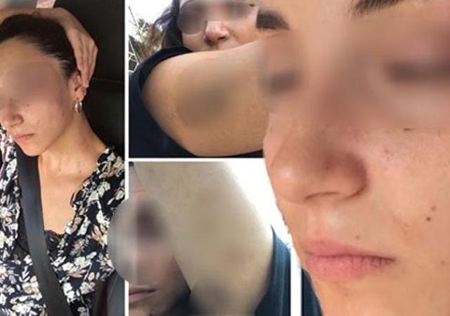 Avukat yalıdaki dehşet anlarını anlattı: Yüzümü ısırdı, bana kafa attı