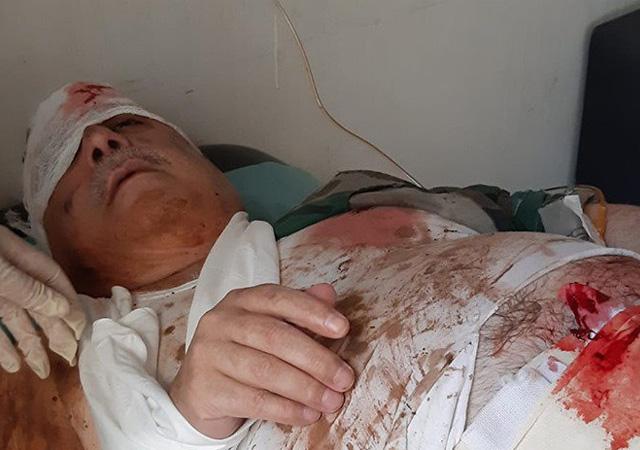 Terörist Mihraç Ural saldırıda yaralandı