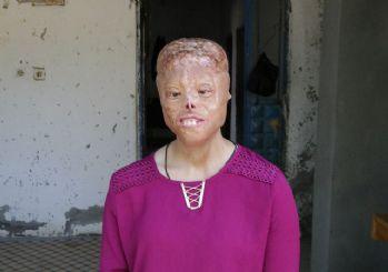 Sağlık Bakanı Koca'dan yüz nakli olmayı bekleyen Leyla'ya destek