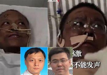 Çin'de corona virüsünü yenen doktorların ten rengi değişti