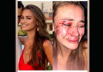 Ukraynalı top model Daria Kyryliuk Çeşme'de darbedildi
