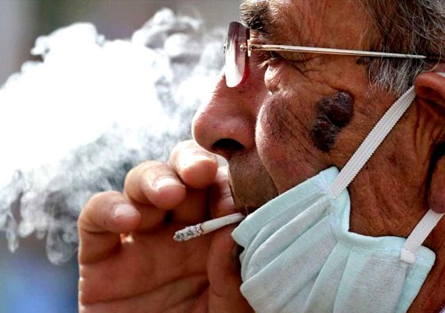 Sağlık Bakanlığı: İftar sonrası sigarada beyin kanaması riski var