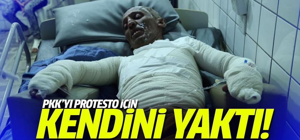 PKK'yı protesto etmek için kendini yaktı!