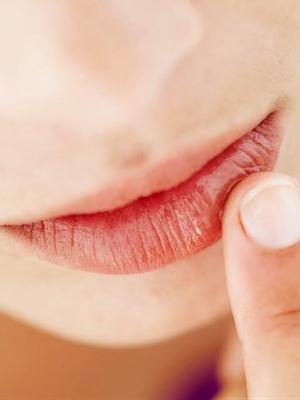 Çatlamış dudaklara bal maskesi tarifi